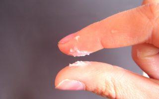 Khí hư ra nhiều vón cục như bã đậu khi mang thai