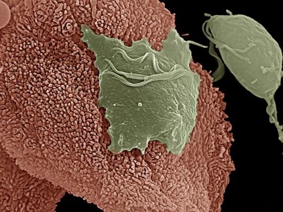 Khí hưmàu xanh là bệnh gì? Ra khí hư màu xanh và ngứa