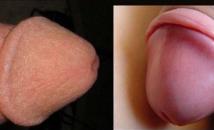 Hình ảnh sau khi cắt bao quy đầu là gì? Cắt bao quy đầu có đau không và lợi ích?