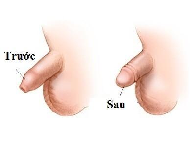Bao quy đầu dài trước và sau khi lột