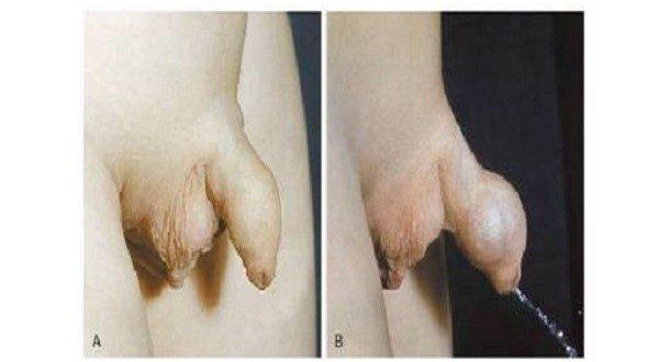 Hẹp bao quy đầu ở trẻ em gây khó khăn khi đi tiểu