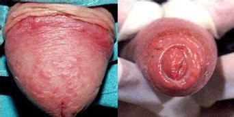 Viêm da bao quy đầu khiến phần quy đầu cũng bị sưng tấy