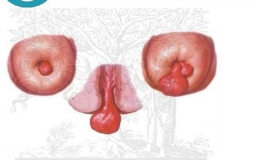 Hình ảnh polyp cổ tử cung có các khối u chèn ép cổ tử cung có thể gây vô sinh