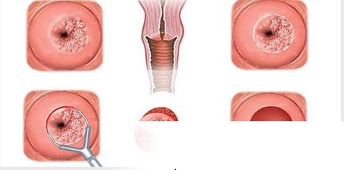 Hình ảnh bệnh polyp cổ tử cung